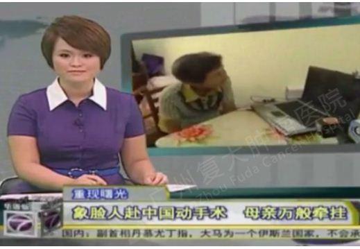 马来西亚NTV7电视台:象脸人梁志明赴中国复大肿瘤医院动手术